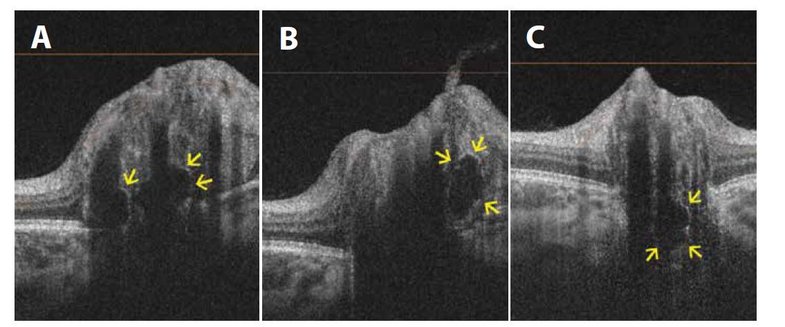 Lineární horizontální transpapilární swept source OCT skeny zobrazují v různých řezech drúzy terče zrakového nervu jako hyporeflektivní ložiska s hyperreflektivním lemem<br> (A) Dvě hluboké drúzy a elevace terče zrakového nervu u 11leté pacientky. (B) Další drúza na stejném oku, ale na jiném řezu. (C) Hluboká drúza u 5letého pacienta