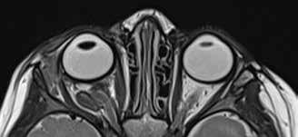 MRI vyšetření 6 týdnů po operaci. Přetrvávající rozšíření pravé orbity, bulbus již bez protruze, optický nerv esovitě vinutý