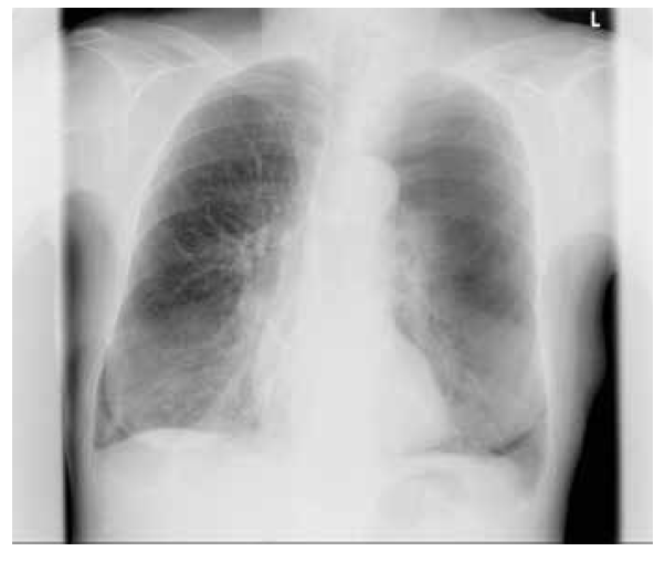 Zadopřední skiagram hrudníku – v levém plicním poli je viditelná linie, od které do vrcholu a laterálně není patrná plicní kresba – obraz pneumotoraxu l. sin