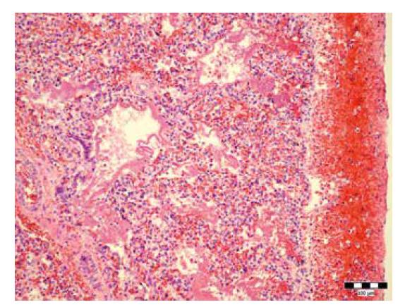 Hypoplázia pľúc (hematoxylín-eozín, zväčšenie 200x).