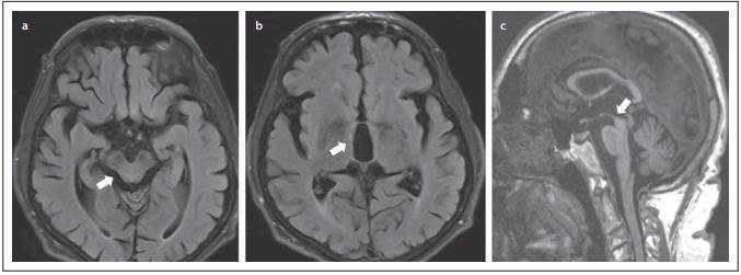 MR. (a) Atrofi e laterálních hran mezencefala na axiálním řezu (Mickey mouse sign / příznak svlačce); (b) rozšíření III. komory mozkové; (c) atrofi e dorsum mesencephali na sagitálním řezu (příznak kolibříka).<br> Fig. 2. MRI. (a) Atrophy of the lateral edges of the midbrain on the axial plane (Mickey mouse sign / morning glory sign); (b) dilatation of the IIIrd cerebral ventricle; (c) atrophy of the cranial and dorsal part of the midbrain on the sagittal plane (hummingbird sign).