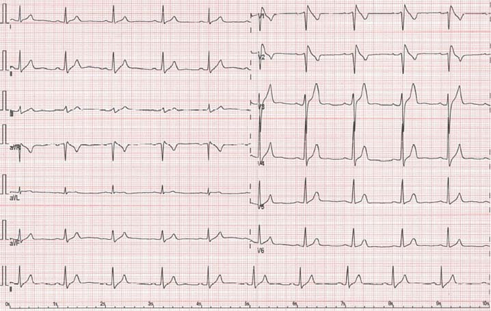 "EKG obraz Brugadova syndromu – typ I (""coved type"") s nahoru vyklenutou ST elevací."