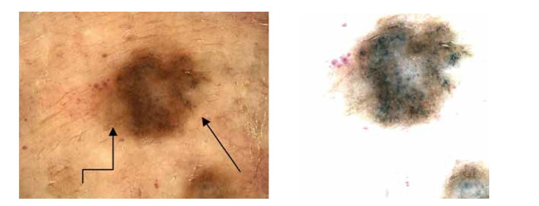 a,b. Dermatoskopicky heterogenní obraz – hnědé globule asymetricky, šedočerné tečky na pravém okraji (šipka), diskrétní pigmentová síť na levém okraji (lomená šipka).