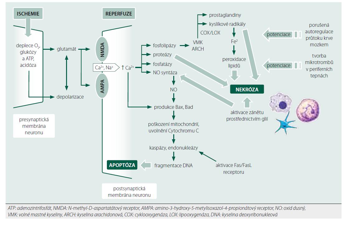 Patofyziologické mechanismy poškození mozku po srdeční zástavě