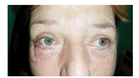 Ektropium pravého oka – stav po operaci