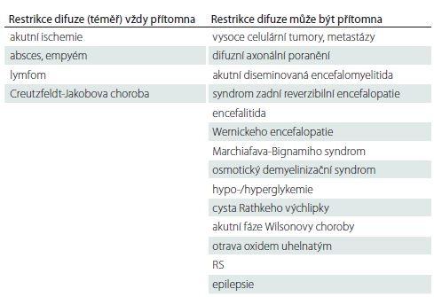 Přehled onemocnění s restrikcí difuze na MR mozku u dospělých.