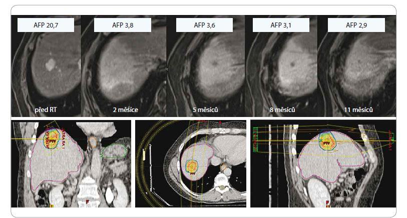Hepatocelulární karcinom u 61letého pacienta po SBRT, dávka 3 × 18 Gy, předpis na 80% izodózu, efekt léčby (regrese, pokles AFP, asymptomatická postradiační reakce v okolním jaterním parenchymu).<br> SBRT – extrakraniální stereotaktická radioterapie, AFP – alpha-fetoprotein, Gy – Gray