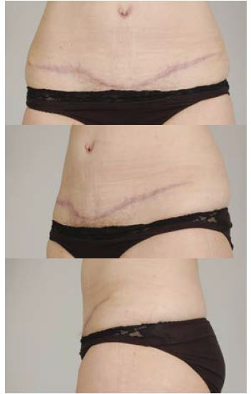 Obr. 7b Pacientka 1 rok po operaci