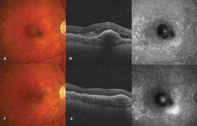 Idiopatická choroidální neovaskularizace<br> A. Foto fundu před zahájením léčby ranibizumabem. Ložisko neovaskulární membrány, kolem ložiska subretinální hemoragie<br> B. HD-OCT před léčbou. Ablace a edém neuroretiny, elevace retinálního pigmentového epitelu<br> C-D. FAG nález při první návštěvě. Postupně gradující hyperfluorescence neovaskulární membrány, blokáda fluorescence z důvodu subretinální hemoragie<br> E. HD-OCT po léčbě. Pokles edému neuroretiny a retinálního pigmentového epitelu<br> F. Foto fundu po léčbě. Ohraničeno ložisko s pigmentem