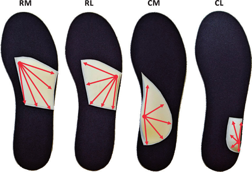 Uložení pelot na základní stélce, šipky ukazují směr sklonu pelot. RM – retrokapitální mediální pelota se zvýšením pod II. metatarzem.<br> Vysvětlivky: RL – retrokapitální laterální pelota se zvýšením pod V. metatarzem, CM – kalkaneální mediální pelota, CL – kalkaneální laterální pelota