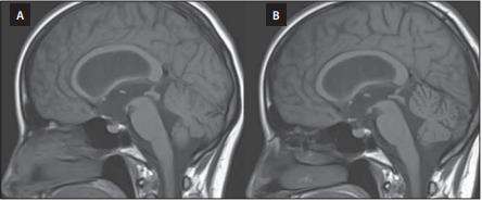 Předoperační MR mozku, T1 vážený obraz, sagitální projekce. (A) Vyjádřený  bowing třetí komory. (B) Pooperační úprava tvaru třetí komory po úspěšné endoskopické ventrikulocisternostomii.<br> Fig. 3. Preoperative brain MRI, T1-WI, sagittal projection. (A) Bowing of the third ventricle. (B) Postoperative correction of the third ventricle morphology after successful endoscopic ventriculocisternostomy.