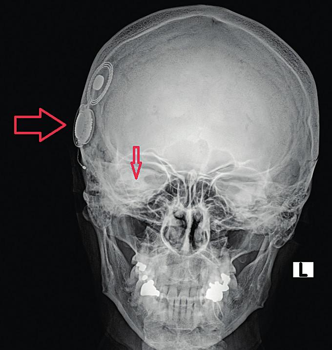 Nativní snímek hlavy – předozadní projekce, kochleární implantát pravostranný. Velkou vodorovnou šipkou označeno tělo implantátu, malou svislou šipkou elektrodový svazek.