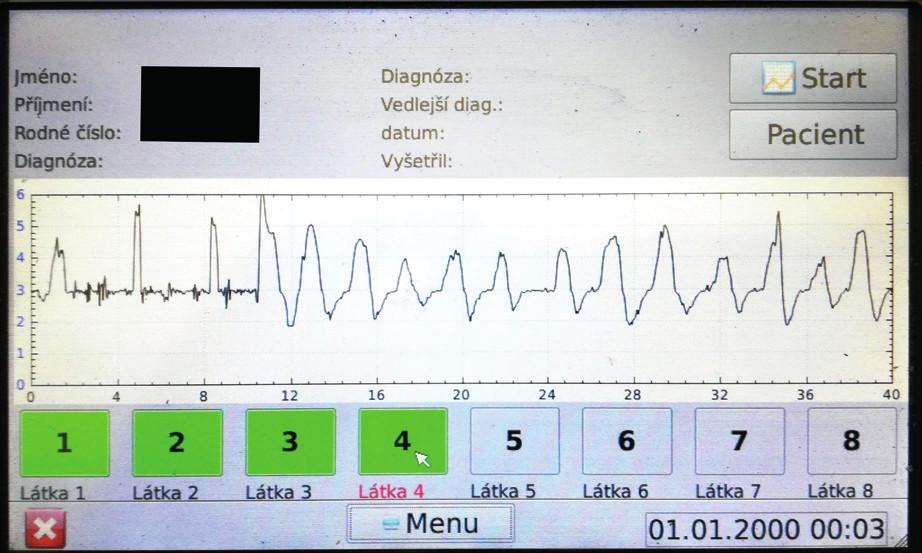 Záznam vyšetření nosní průchodnosti pomocí flowmetru – během úvodních 10 sekund vyšetření pacient mluví, jsou zde patrné artefakty a hodnocení díky tomu nemusí být přesné.