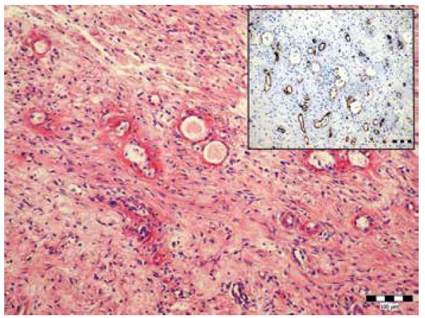 Fibrinoidná nekróza stien ciev malého kalibru v mezentériu. Farbenie hematoxylín-eozín (zväčšenie 200x). Vložený obrázok imunohistochémia anti CD-34 (zväčšenie 200x).