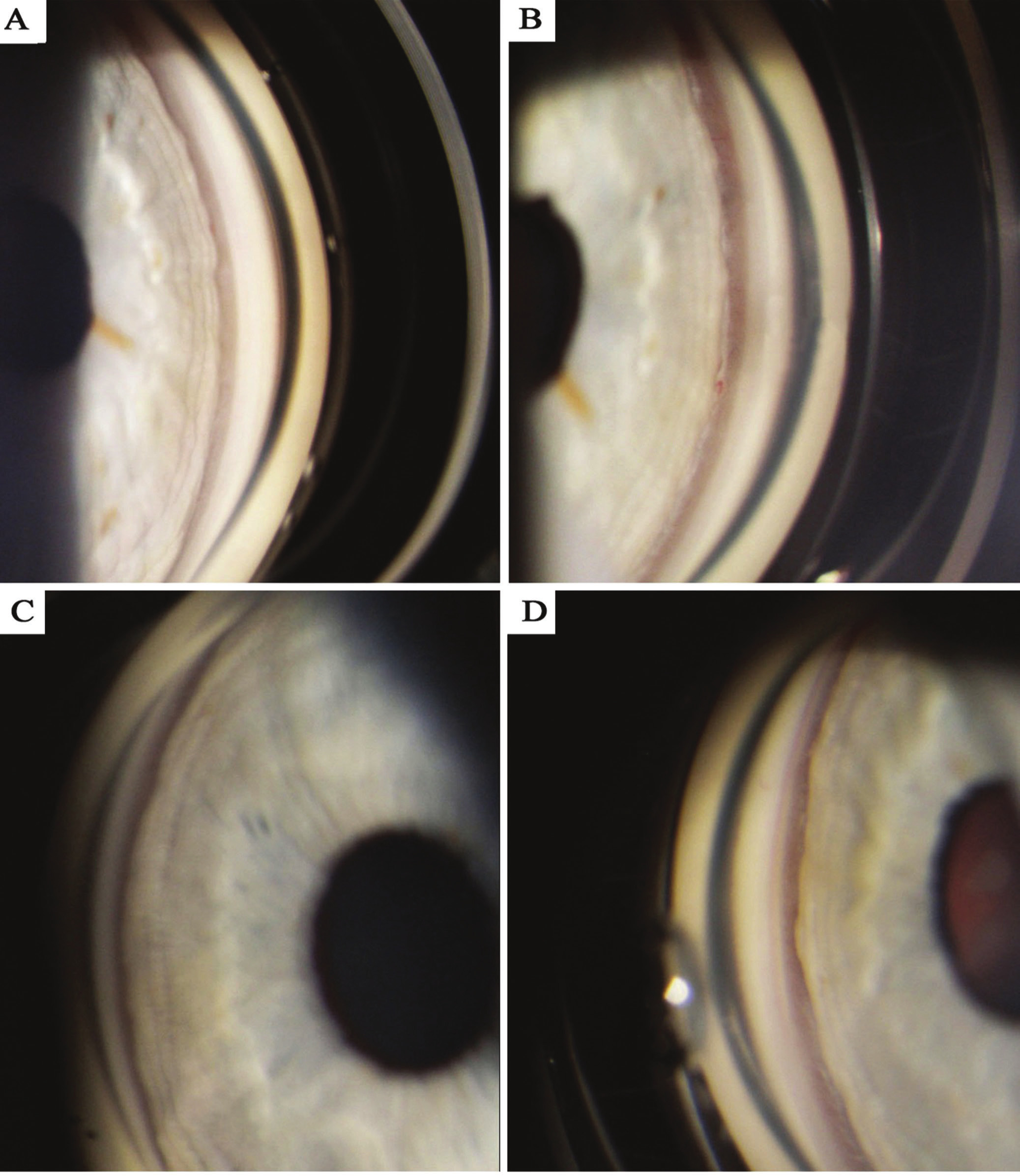 Gonioscophy photograph – documentation of configuration of chamber angle, A) right eye before discontinuation of trazodone, B) right eye after discontinuation of trazodone, C) left eye before discontinuation of trazodone, D) left eye after discontinuation of trazodone.