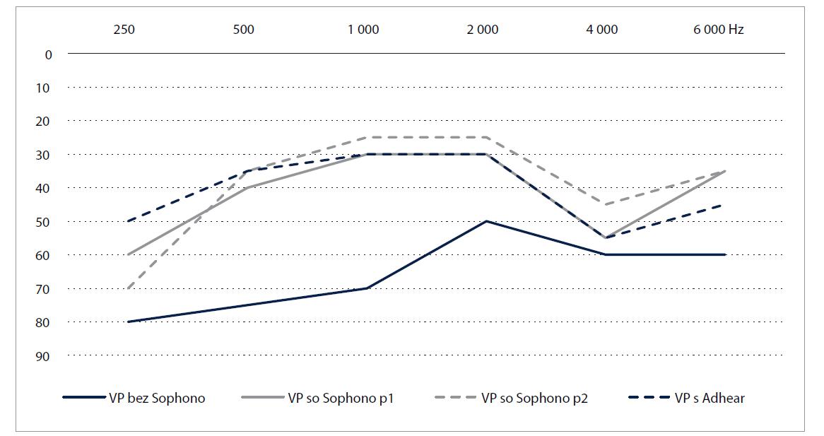 Rozdiel v prahovej tónovej audiometrii vo voľnom poli bez a so Sophono a s Adhear u pacienta 2 (p1, p2 = program 1 a program 2 rečového procesora).<br> Graph 4. Pure tone audiometry in free field in unaided and aided (Sophono or Adhear) conditions in patient 2 (p1, p2 = program 1 and program 2 of the speech processor).